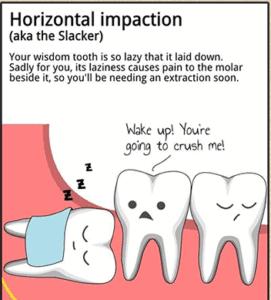 wisdom teeth sarasota