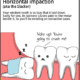wisdom teeth sarasota