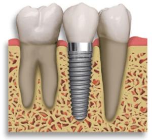 dental implant restoration sarasota
