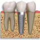 dental implant restoration sarasota