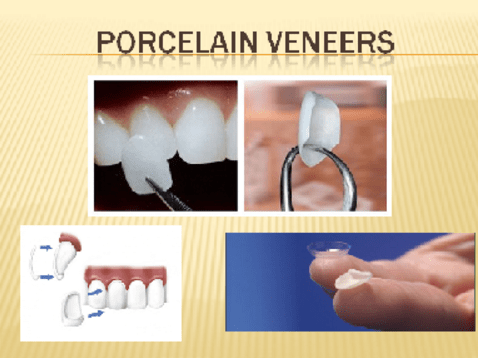 dental veneers smile sarasota
