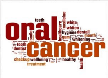 oral cancer screening sarasota