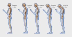 texting causes spinal degeneratio