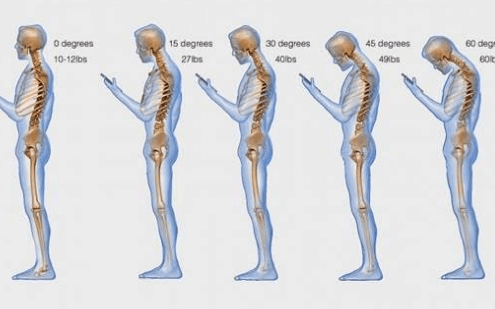texting causes spinal degeneratio