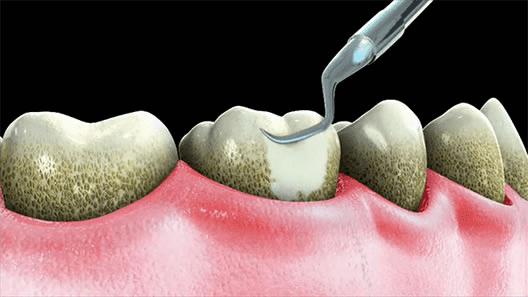 teeth cleaning in sarasota