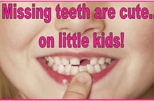 replace missing teeth sarasota