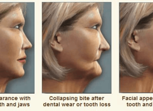 tooth loss and facial changes