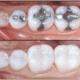 white vs silver dental fillings sarasota