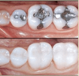 white vs silver dental fillings sarasota