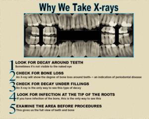 digital dental xrays sarasota