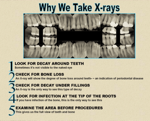 digital dental xrays sarasota