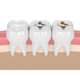 teeth with gold, amalgam and composite fillings