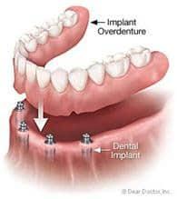 Denture Implant